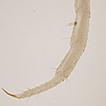 First record of Amphoromorpha/ Basidiobolus ...